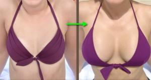 Større bryster med implantater